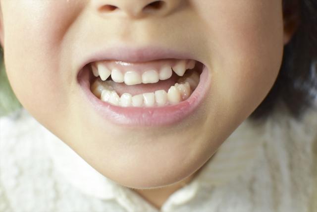 歯並び 悪い
